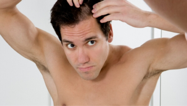 Hair Fall in Men